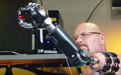 Hangout with Johnny Matheny: World's First Osseointegrated, Neurally Controlled Prosthetic